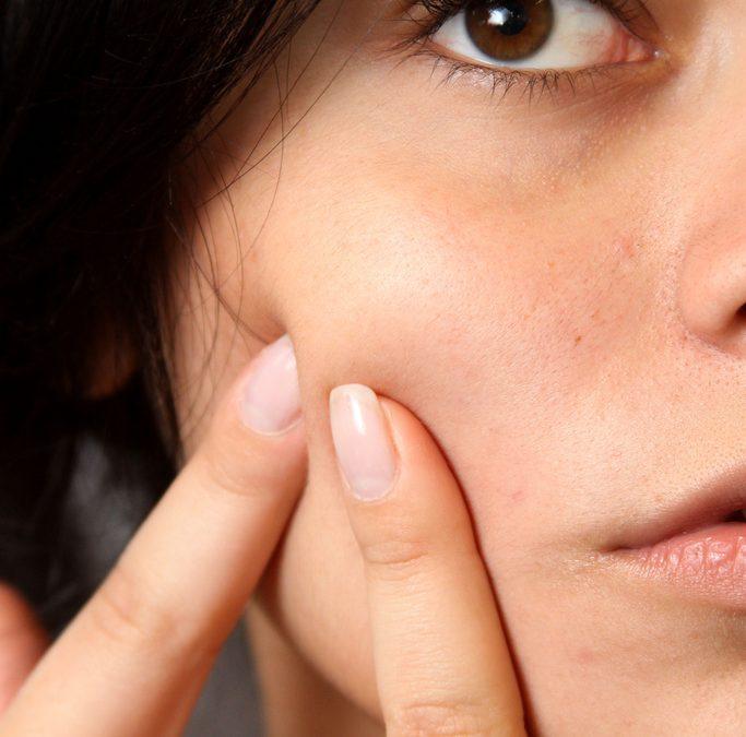 Cloreto de Magnésio P.A.: a Solução Perfeita para Acne, Eczema, Psoriase