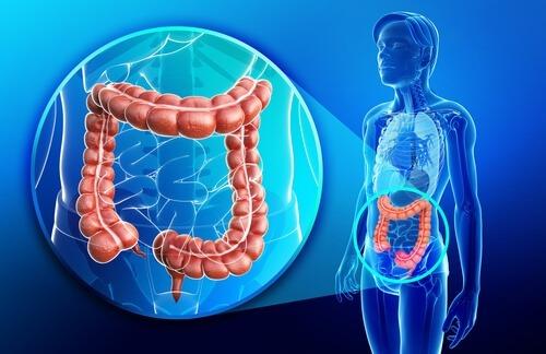 A Doença de Crohn