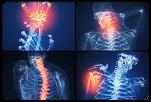 Artrite Reumatóide – Caso de Sucesso com Cloreto de Magnésio P.A.